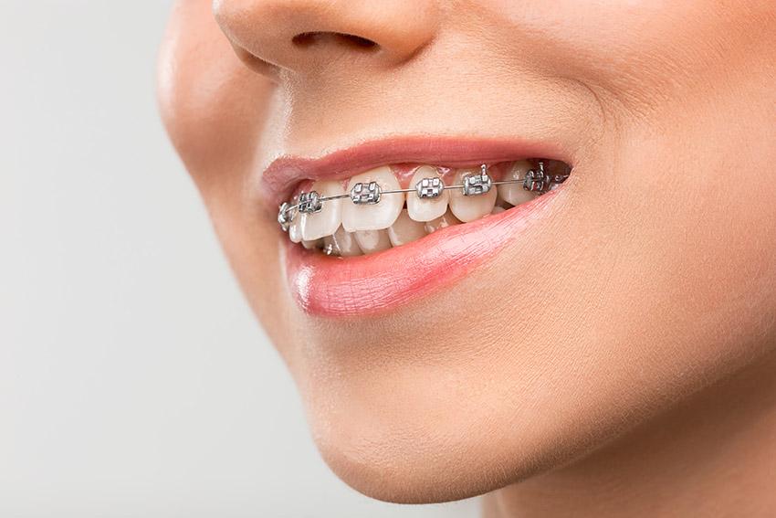 Aparatul Dentar: Costuri, Tipuri de Aparate, Avantaje și Dezavantaje
