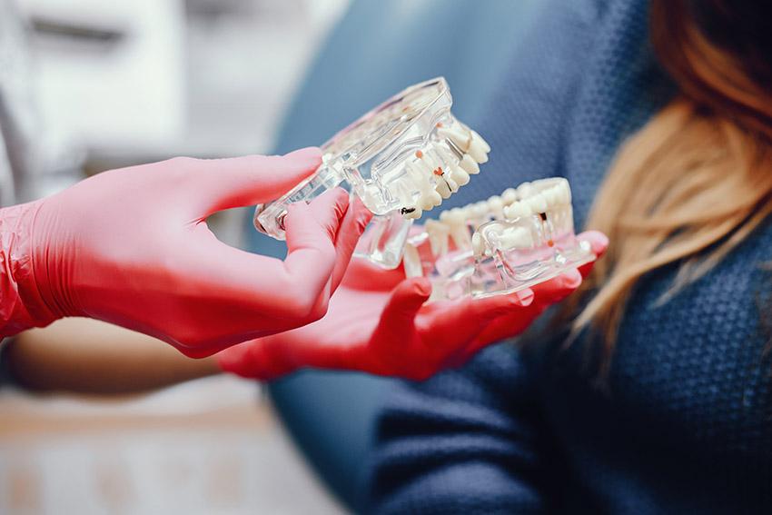 Cât costă un implant dentar?