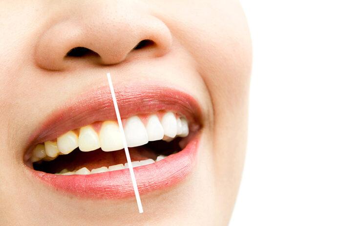 Cât costă o albire dentară profesională?